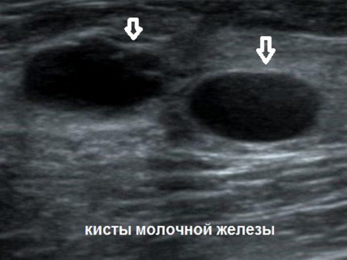 Виден ли рак на узи молочных желез