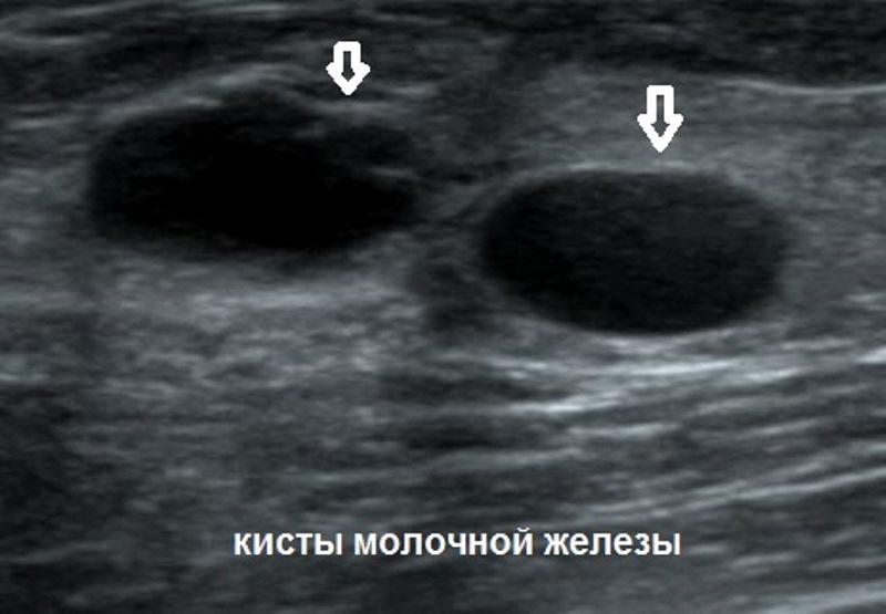 узи молочной железы фото