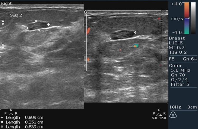 Что информативнее маммография или узи молочной железы